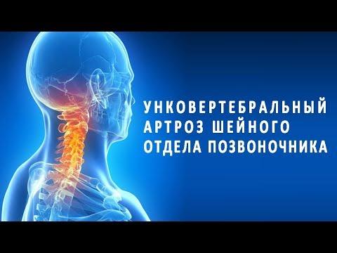 Мед при лечении артроза плечевого сустава