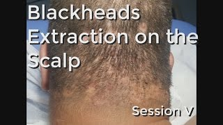 Blackheads Extraction on the Neck  Session II- Part 2 - hlub video