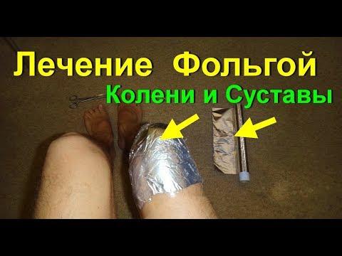 Лечение суставов фольгой.Фольга, как лечить суставы. Боли в коленях уходят от фольги. Артрит. Артроз