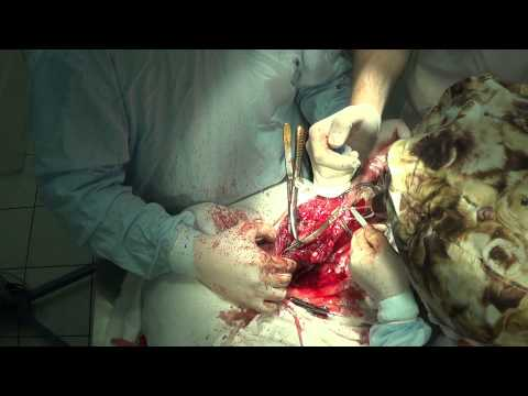 Рефераты лфк при остеохондрозе