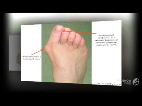 Мозолистый нарост на пальце ноги