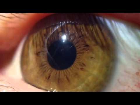 Il pigmentary nota su una faccia da unustione