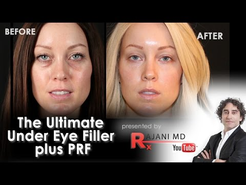 PRF Under Eye Video