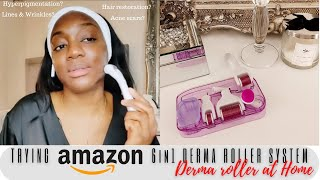 DERMA ROLLER AT HOME BEFORE AND AFTER   AN AMAZON MUST HAVE! (6in1 Derma roller system)   CARMELIA_X