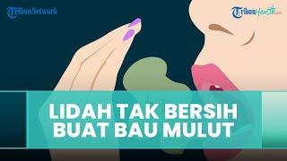 Lidah Tak Bersih Bisa Memicu Bau Mulut, Ini Penjelasan dari Dokter Gigi
