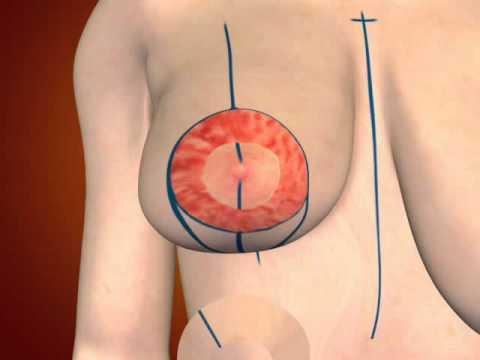 Plastic breast surgery