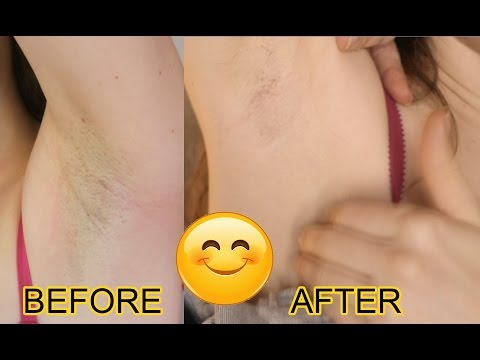 Philips Lumea  IPL  Review – Permanent At Home Hair Removal THAT WORKS! [NOT SPONSORED] – PICS