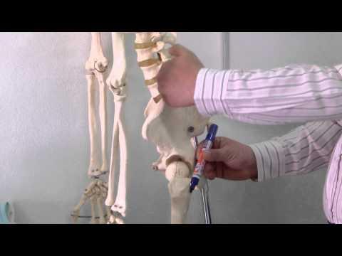การผ่าตัดผิดปกตินิ้วบนขา