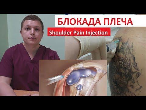 Блокада плечевого сустава | Боль в плече | Shoulder Pain Injection