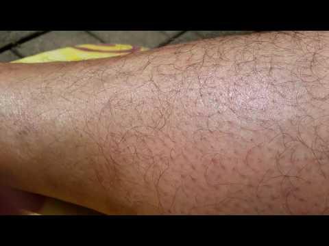 Die Behandlung der Osteochondrose das Präparat almag