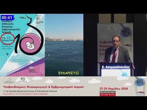 E. Ασημακόπουλος - Διακοιλιακή απεικόνιση
