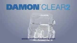 DAMON CLEAR 2 SEVILLA - Clínica de Ortodoncia Pilar Martín Balbuena