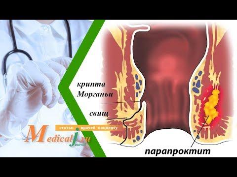 Самое хорошие лекарство от простатита