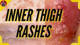 Rashes Between Legs Causes & Treatment - How To Treat Inner Thigh Rash?