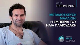 Hλίας Παλιουδάκης - Μεταμόσχευση μαλλιών FUE: Η εμπειρία μου στην Advanced Hair Clinics