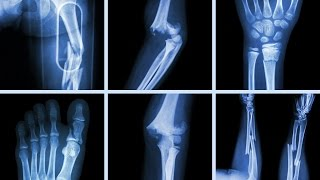 how to tell if you have a broken bone
