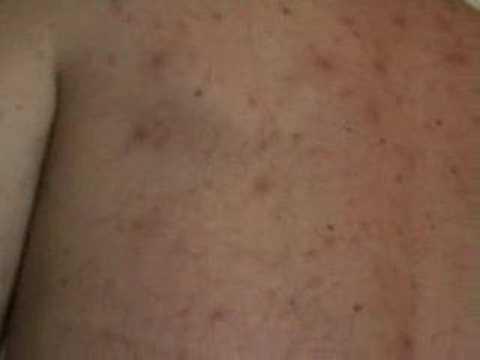 Puntura di acido ascorbico a psoriasi