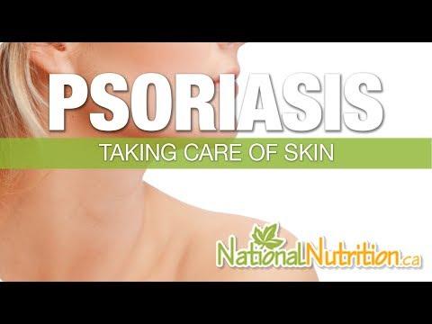 Le psoriasis chez les enfants de la raison les symptômes le traitement