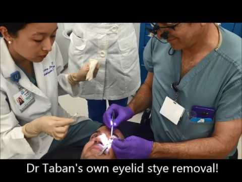 Dr. Taban Undergoes Eyelid Stye Removal Surgery under Local Anesthesia