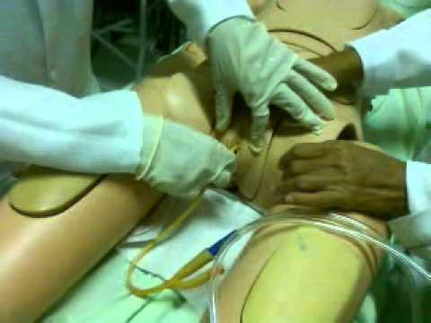 Complicações após cirurgia para o adenoma da próstata