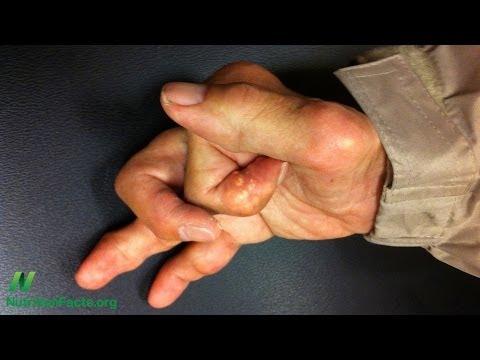 How Turmeric Can Treat Osteoarthritis