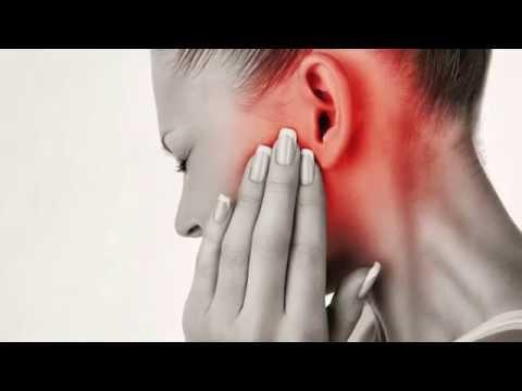 Articulaciones de flexión para los efectos secundarios