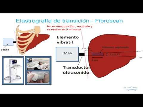 Medición de la presión arterial del pulso