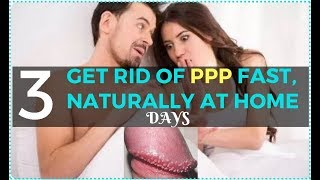 How To Get Rid Of Pearly Penile Papules Fast, Naturally at Home - Remove PPP in 3 Days!