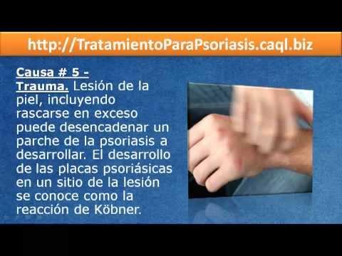Tiosulfat del sodio-tratamiento de la psoriasis