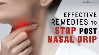 10 Effective Remedies To Stop Post Nasal Drip