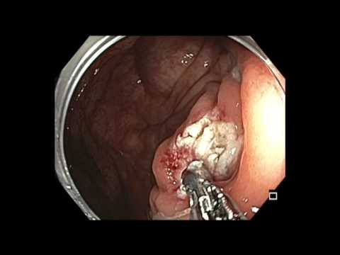 Colonoscopy: Cecal Polyp Hot Biopsy Avulsion