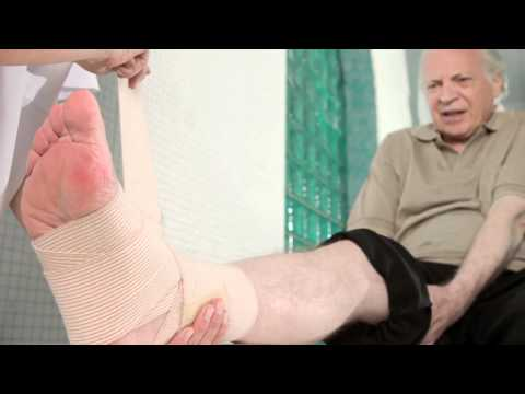 Wrzody na nogach z żylakami