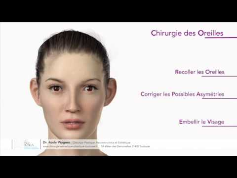 Otoplastie ou chirurgie des oreilles décollées
