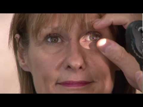 Viziune diferită a ochiului