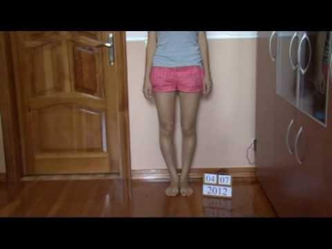 Wzrost na stawach palców stóp zdjęć