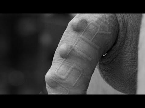 Cosa fare se colpisci il pene