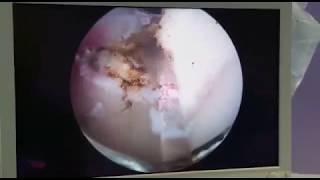 Thulep-laser per iperplasia prostatica