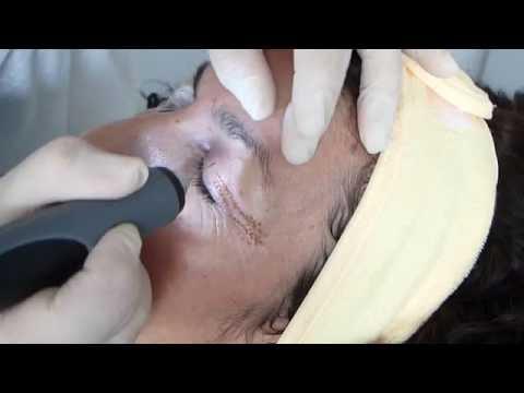 Chirurgische Entfernung der Prostata Steine