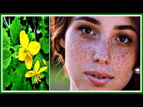 Как отбеливать кожу интим месте