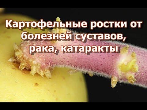 От болезней суставов, рака, катаракты помогут картофельные ростки