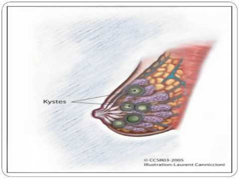 Omega-3 avec lhypertension
