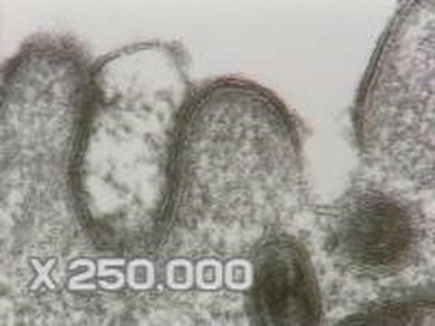 Hány pinworms él az emberi testön kívül