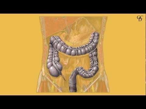 Simulatore di Markelov per le recensioni prostata