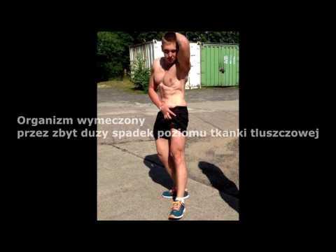 Złamanie kości udowej mięśni