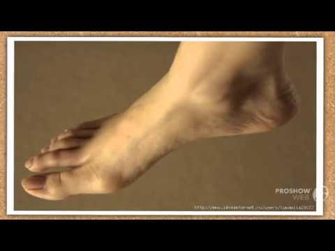 Вальгус ног у ребенка 5 лет