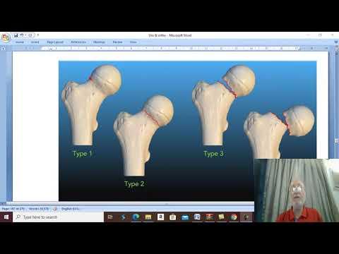 Metode moderne de tratare a bursitei articulației cotului