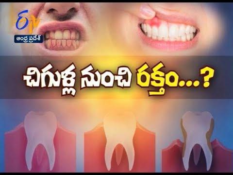 Kims dental hospital, best dental care, dental clinic Kondapur, dental implants Kondapur, dentist Kondapur, dentist in Kondapur, dental appointment in Kondapur, dental hospital Kondapur, best dental in India, best dental hospital in Hyderabad, best dental hospital in secundrabad