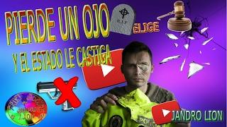 Juan Cadenas. Pierde un ojo y el Estado le castiga. Vergüenza. Aterrador. #frikisocial