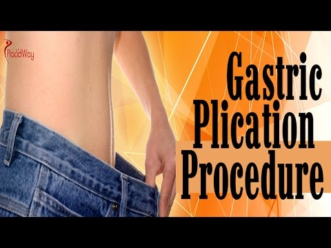 Gastric Plication Overview | Great Weight Loss Surgery Option
