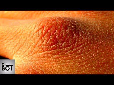La varice variqueuse a aidé